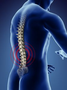 Spine Injury Lawyer in San Diego, Personal Injury